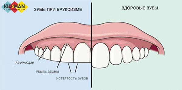 разница между здоровыми зубами и бруксизмом