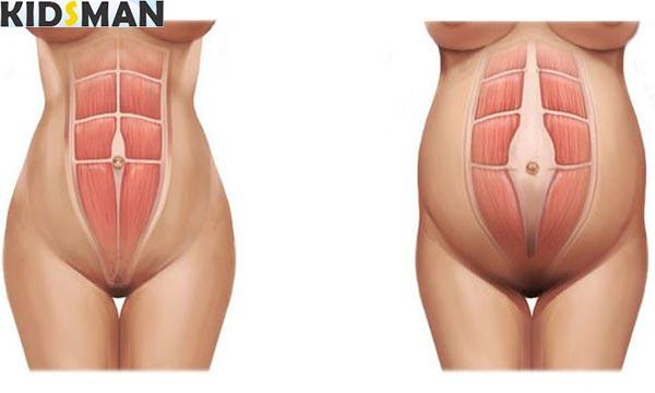 Изменение брюшной полости при беременности картинка