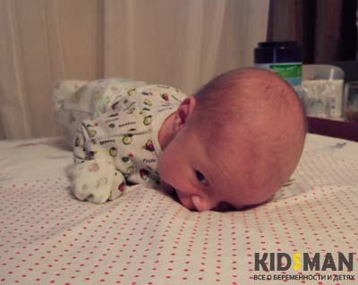 ребенок не может держать голову