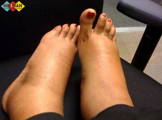 отек ног у беременной
